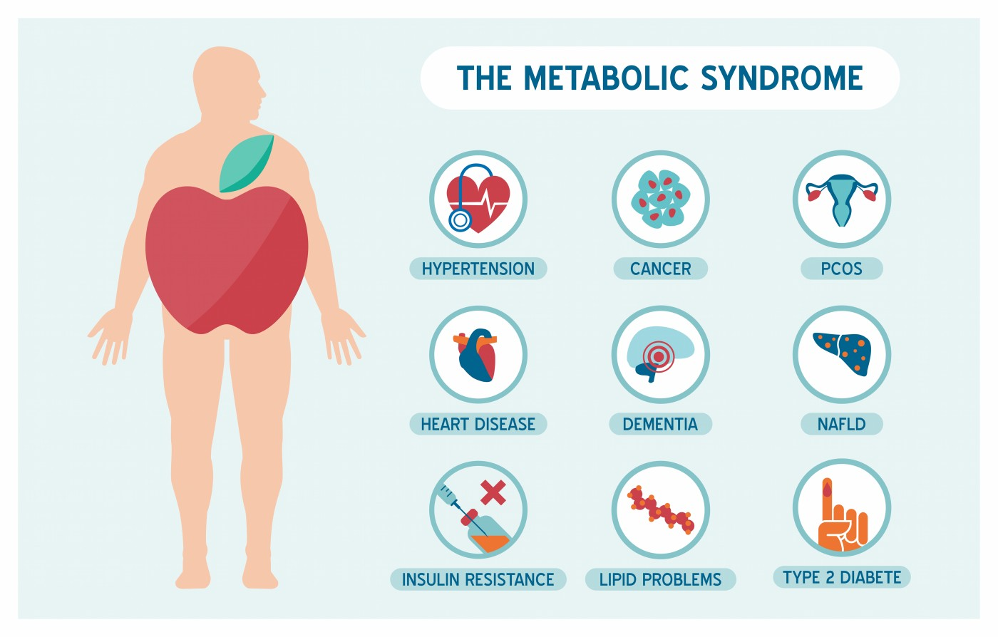 metablic syndrome Metabolic syndrome is a condition that includes various health issues it is linked to obesity, cardiovascular disease, high blood pressure, and type 2 diabetes lifestyle modification and control.