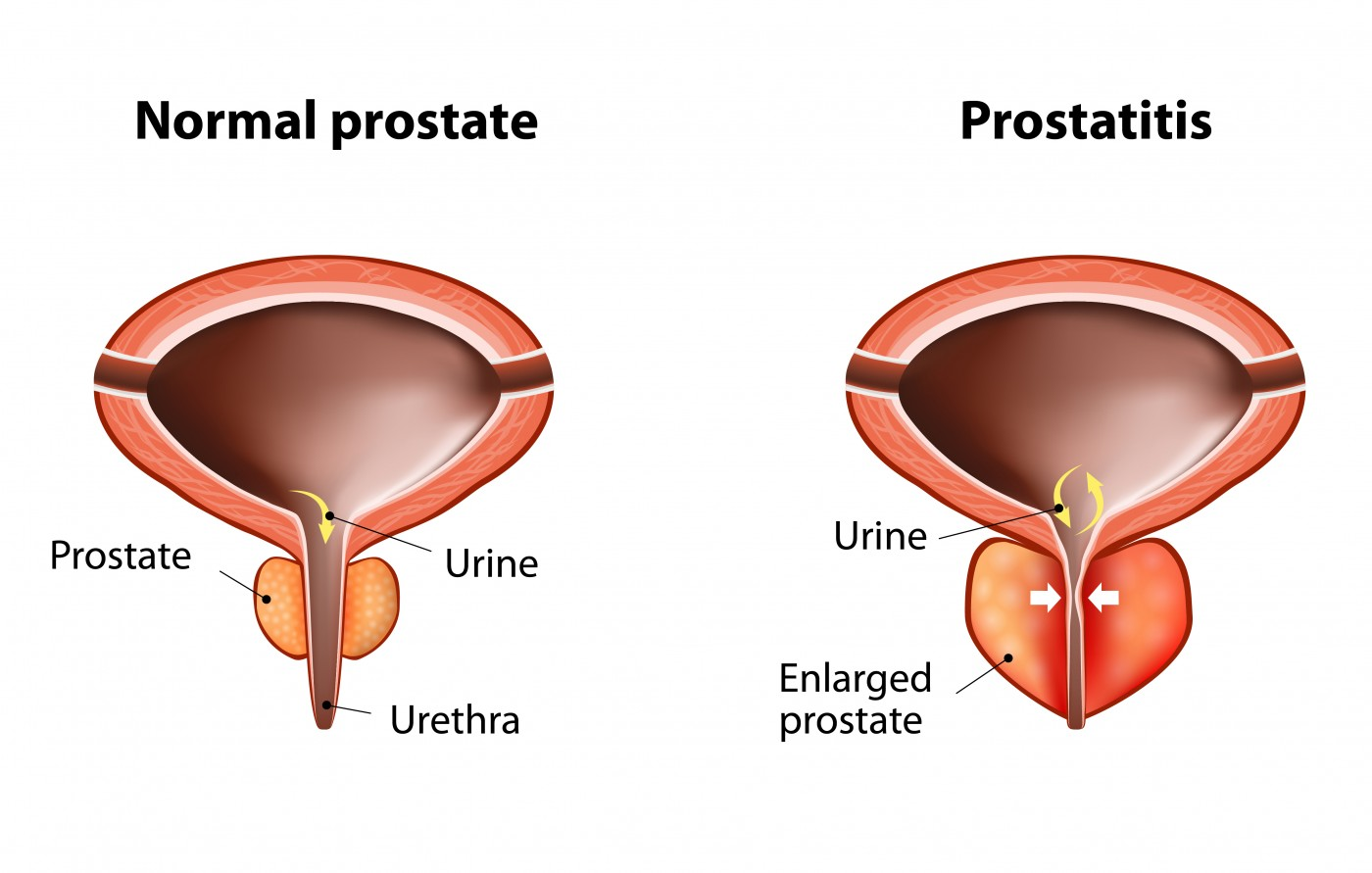 Prostatitis What You Need To Know-6432