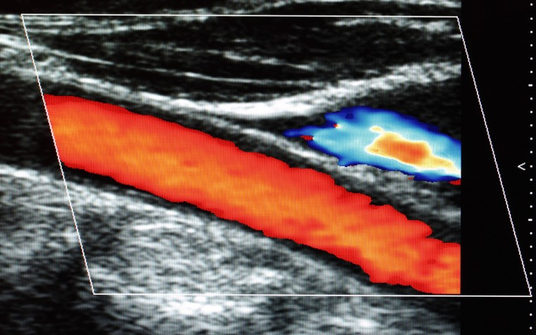 Clinical significance of prostate blood flow
