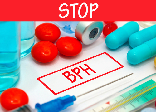 Why We Need Clinical Trials for BPH