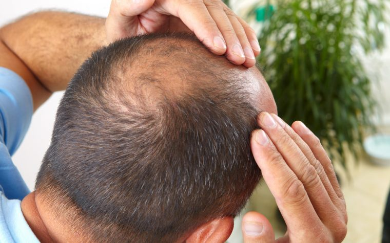 male baldness and BPH